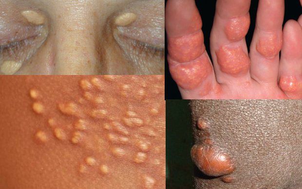 XANTHOMA contraindications In beauty therapy