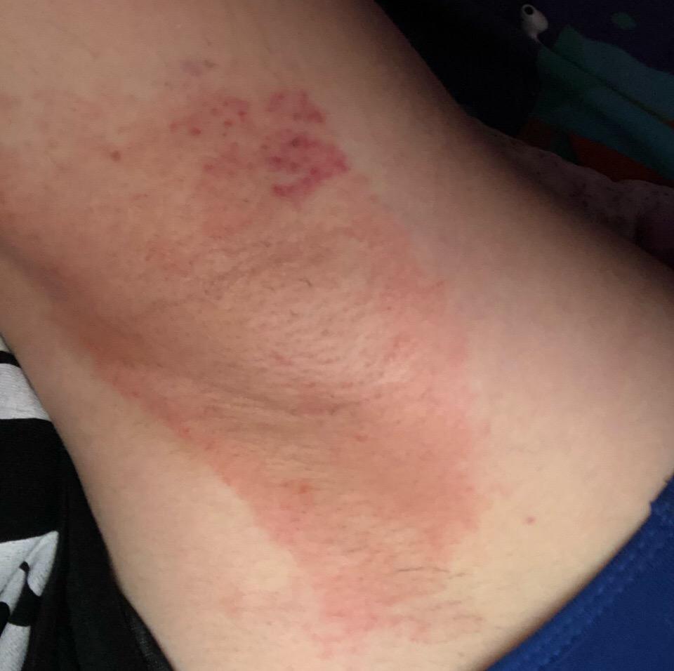 Wax burns: how to take away pain and heal. 1