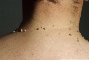 SKIN TAGS contraindications In beauty therapy