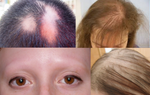 ALOPECIA contraindications In beauty therapy