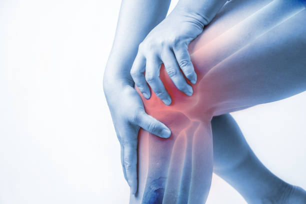 ARTHRITIS contraindications In beauty therapy