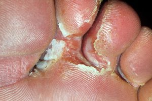 ATHLETE'S FOOT (TINEA CRURIS, TINEA PEDIS) contraindications In beauty therapy