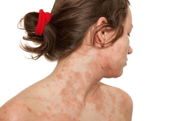 ATOPIC DERMATITIS (ATOPIC ECZEMA) contraindications In beauty therapy