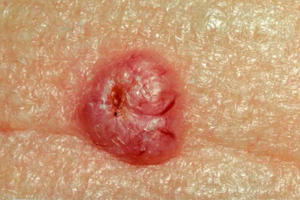BASAL CELL CARCINOMA contraindications In beauty therapy