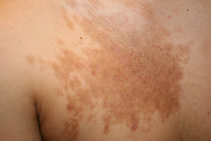 BECKER'S NEVUS contraindications In beauty therapy