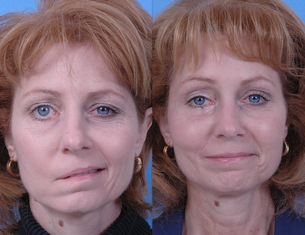 BELL'S PALSY contraindications In beauty therapy