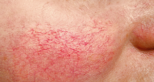 BROKEN CAPILLARIES contraindications In beauty therapy