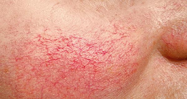 BROKEN CAPILLARIES contraindications In beauty therapy