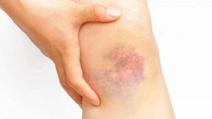 BRUISE contraindications In beauty therapy