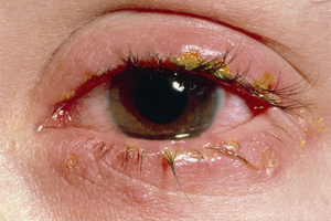 CONJUNCTIVITIS (Bacterial infections) contraindications In beauty therapy