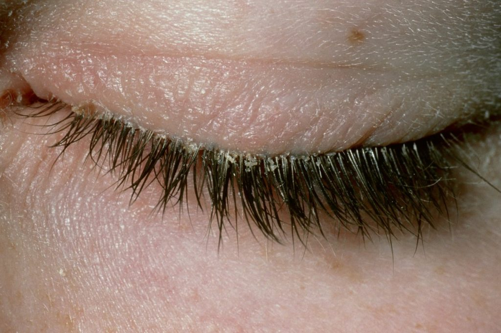 BLEPHARITIS contraindications In beauty therapy