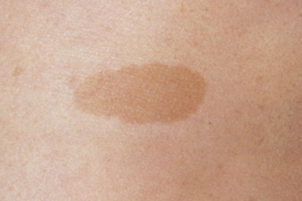 CAFÉ AU LAIT MACULE contraindications In beauty therapy