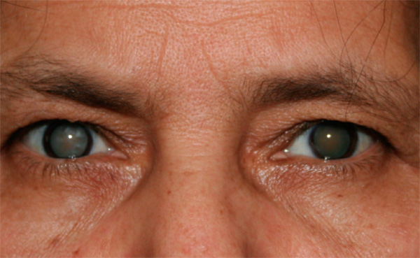 CATARACT contraindications In beauty therapy