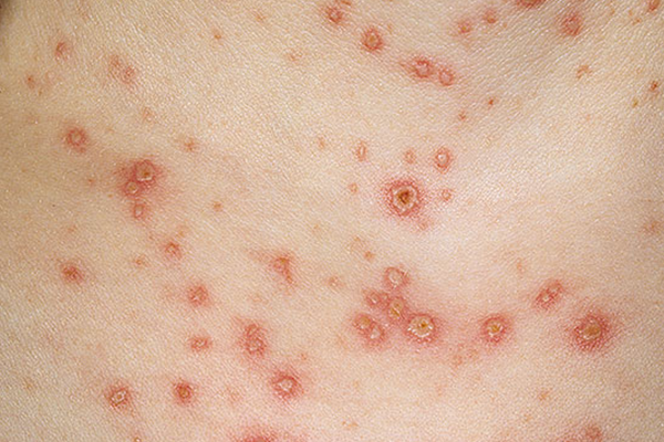 CHICKENPOX (VARICELLA) contraindications In beauty therapy
