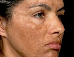 CHLOASMA (MELASMA) contraindications In beauty therapy