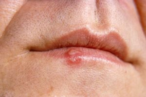 COLD SORES, HERPES (Viruses) contraindications In beauty therapy