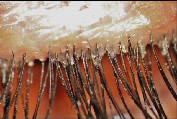 DEMODEX FOLLICULORUM contraindications In beauty therapy