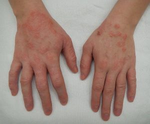 DERMATITIS contraindications In beauty therapy