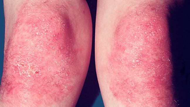 DERMATOMYOSITIS contraindications In beauty therapy