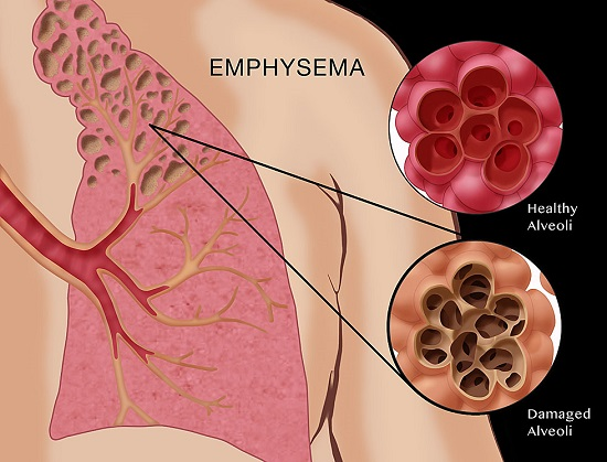 EMPHYSEMA contraindications In beauty therapy