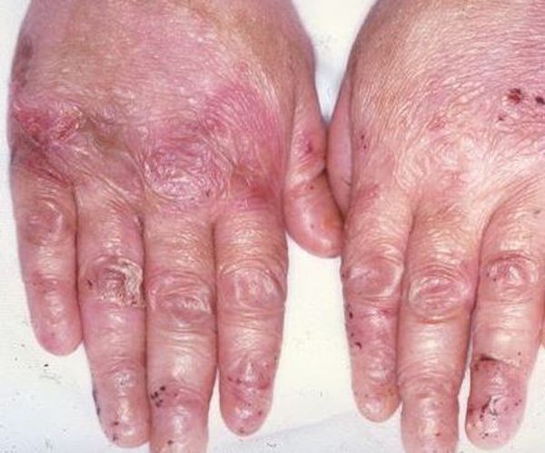 EPIDERMOLYSIS BULLOSA contraindications In beauty therapy