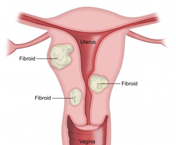 FIBROIDS contraindications In beauty therapy