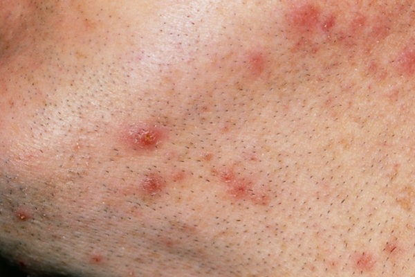 FOLLICULITIS contraindications In beauty therapy