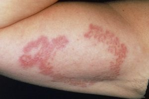 GRANULOMA ANNULARE contraindications In beauty therapy