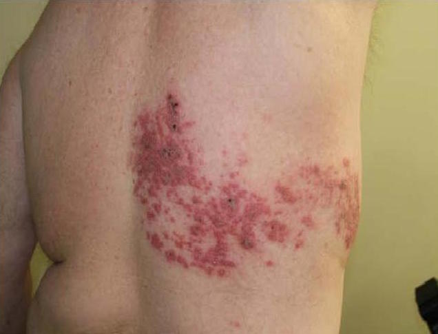 HERPES ZOSTER (SHINGLES) contraindications In beauty therapy