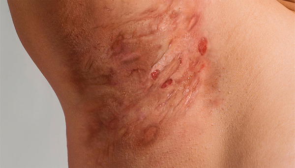 HIDRADENITIS SUPPURATIVA contraindications In beauty therapy