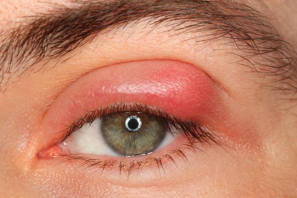 HORDEOLUM (STYE) contraindications In beauty therapy