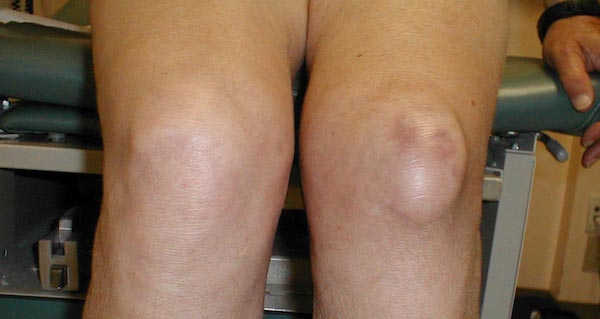 HOUSEMAID'S KNEE contraindications In beauty therapy