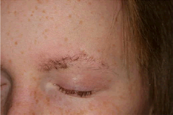 HYPOTRICHOSIS contraindications In beauty therapy