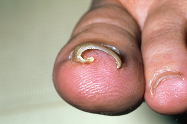 INGROWN NAIL (ONYCHOCRYPTOSIS) contraindications In beauty therapy