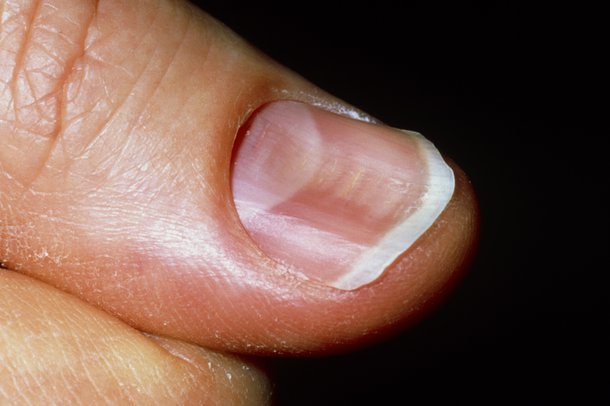 KOILONYCHIA (SPOON NAILS) contraindications In beauty therapy