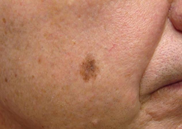 LENTIGO MALIGNA contraindications In beauty therapy