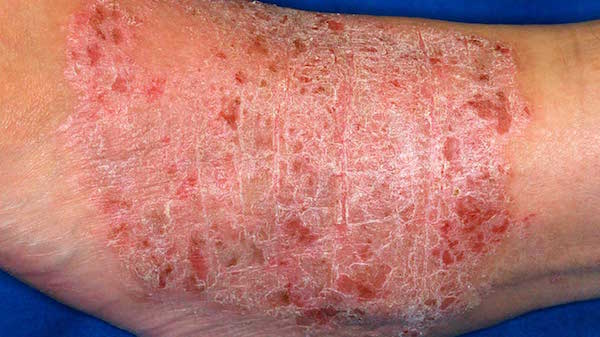 LICHEN SIMPLEX CHRONICUS contraindications In beauty therapy
