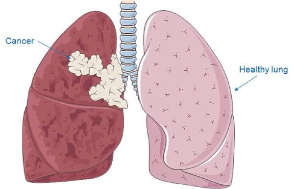 LUNG CANCER contraindications In beauty therapy