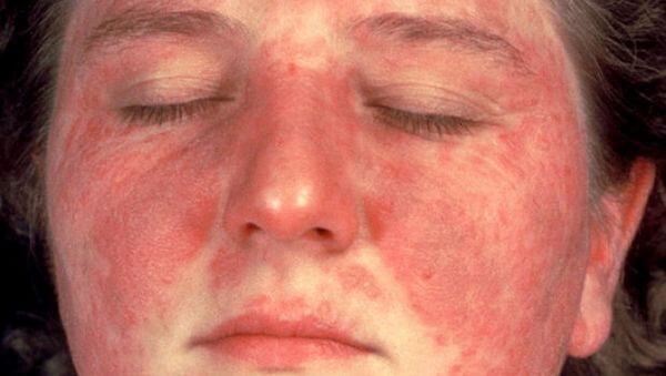 LUPUS ERYTHEMATOSUS contraindications In beauty therapy