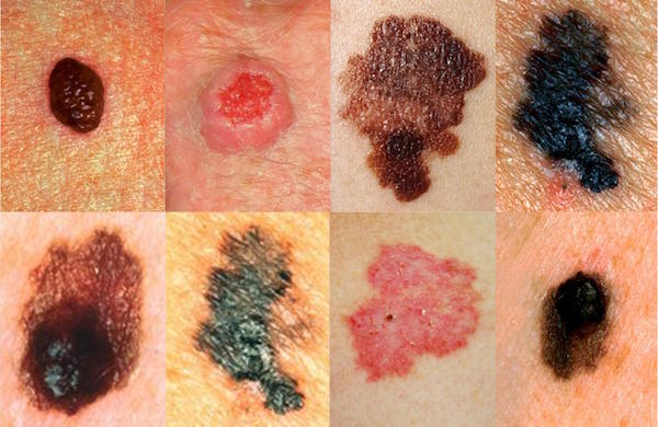 MOLE contraindications In beauty therapy