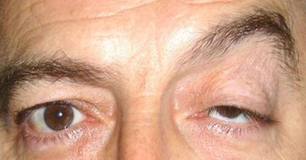 MYASTHENIA GRAVIS contraindications In beauty therapy