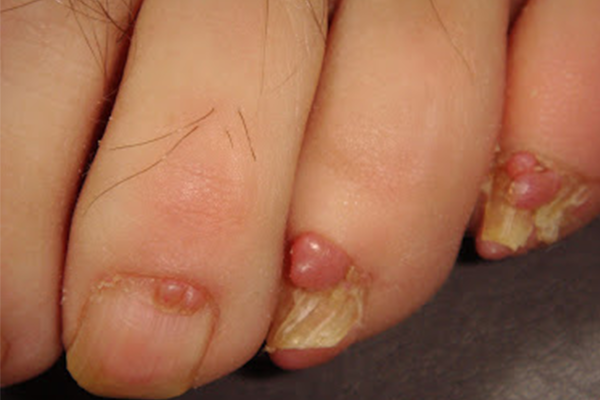NAIL TUMOR contraindications In beauty therapy