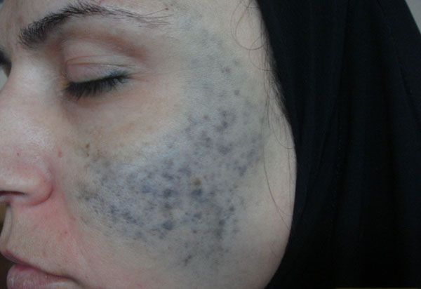 NEVUS OF OTA contraindications In beauty therapy