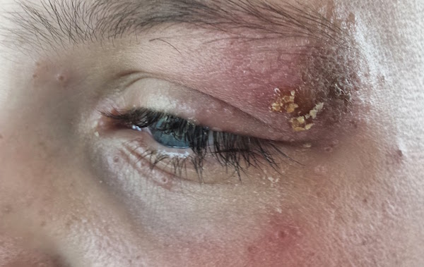 OCULAR HERPES contraindications In beauty therapy
