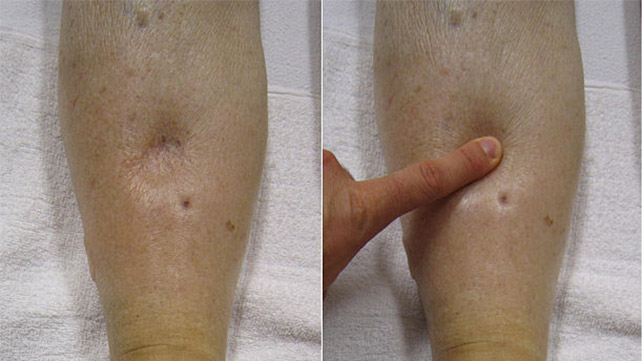 OEDEMA contraindications In beauty therapy