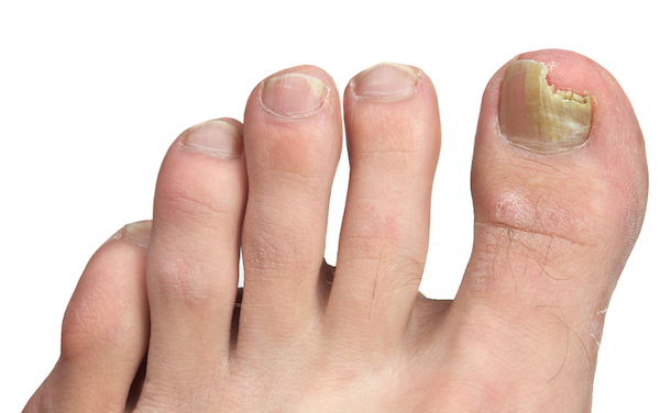 ONYCHOMYCOSIS (TINEA UNGUIUM) contraindications In beauty therapy