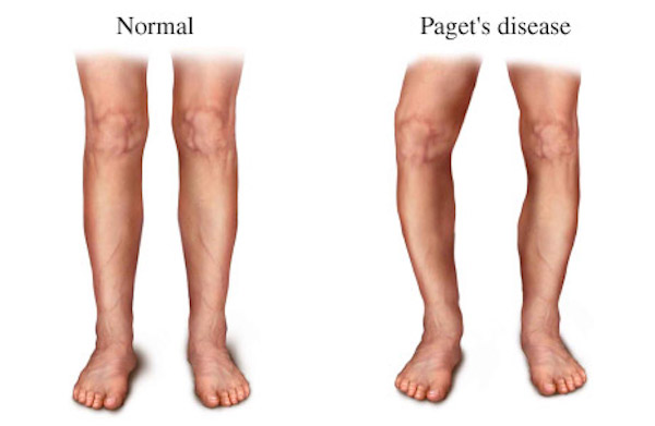 PAGET'S DISEASE contraindications In beauty therapy