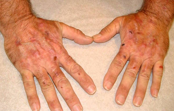 PORPHYRIA CUTANEA TARDA (PCT) contraindications In beauty therapy