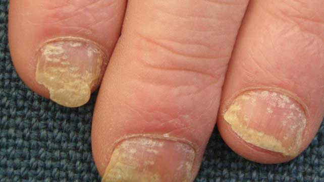 PSORIASIS OF THE NAILS contraindications In beauty therapy