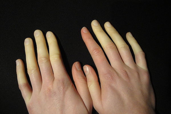 RAYNAUD'S PHENOMENON contraindications In beauty therapy